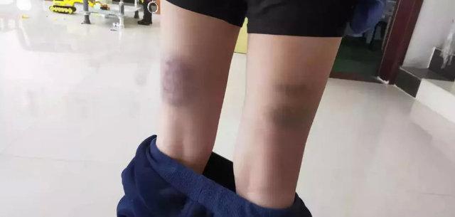 学生小腿被打到发黑。