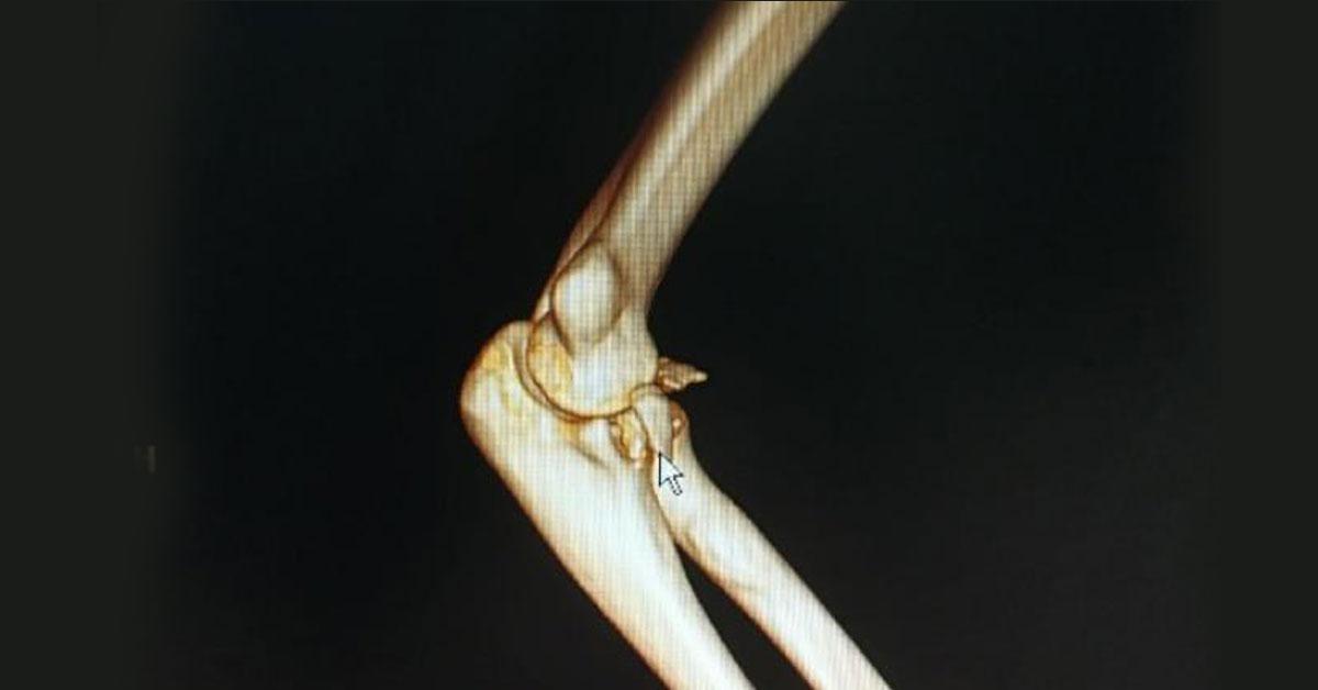"""武汉一名男子以""""公主抱""""方式抱女友,导致手臂骨折。图:互联网"""