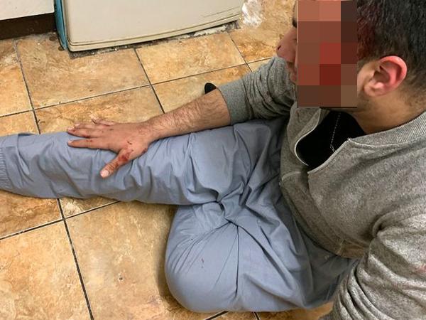 男子跌倒双目失明,Siri帮他叫救护车救他一命