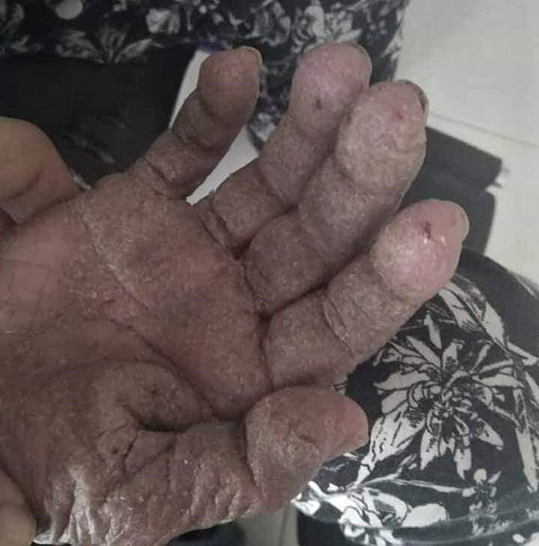 也有照片显示老人的手掌,因长期受到虐待,皮肤情况糟糕。