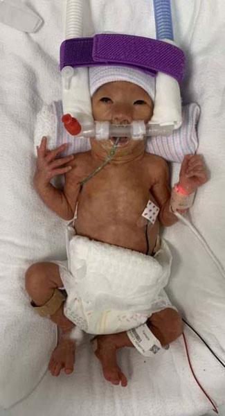 出世10天的女婴照片。