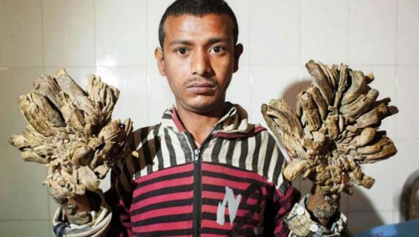"""孟加拉男子巴贾达尔,患有""""疣状表皮发育不良"""",手掌增生仿佛树根的疣。"""