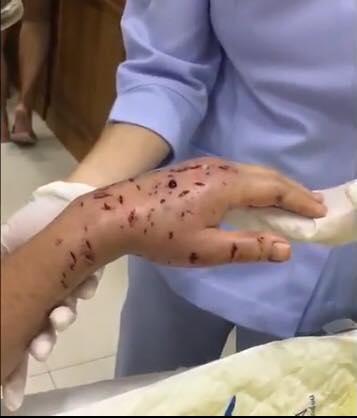 """老奶奶的手被咬得""""血窟窿""""满满。"""