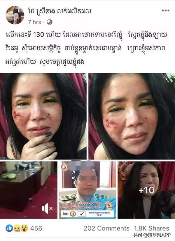 网红泰赛娘在面子书公开她被打得鼻青脸肿的照片。