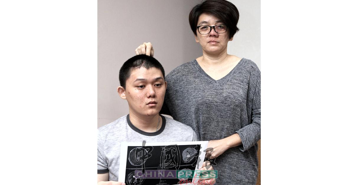 黄秋霞(右)指出姚艺(左)脑部长瘤位置。