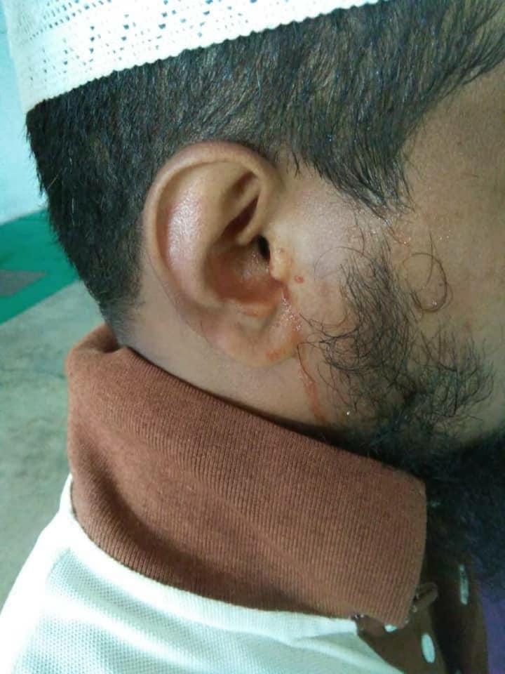 外籍员工遭老板殴打。