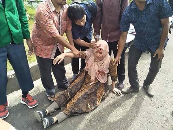 安汶一名女子在地震中受伤。(法新社)