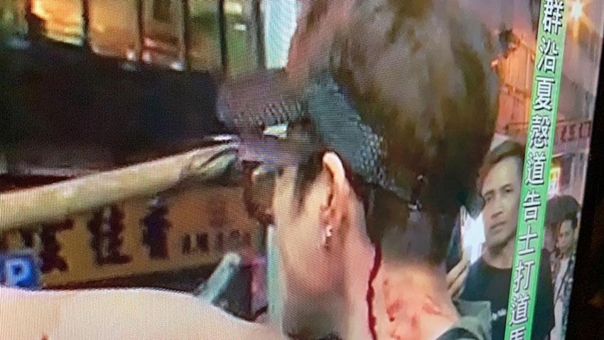 马蹄露嘴角、下巴及颈受伤流血。