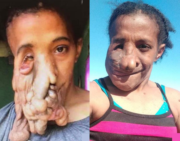 娜塔莉做手术前(左)右半边脸扭曲,手术后(右)五官获得重塑。