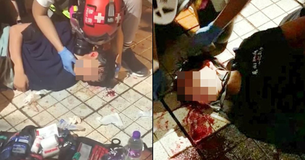 少年疑遭催泪弹射中头部,陷入昏迷。(互联网)
