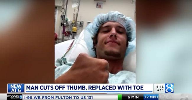 阿特金斯因手误切断了自己的大拇指。