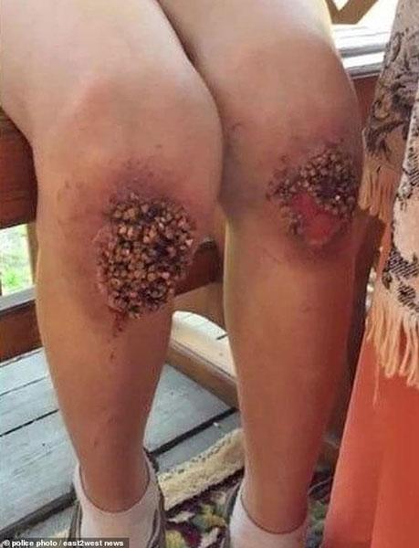 因晚归被罚跪荞麦粒9小时,8岁童双膝盖重伤要动手术