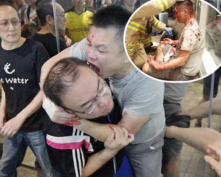 陈真(灰衣)咬甩赵家贤(中)耳壳后被在场人士打伤(小图)。