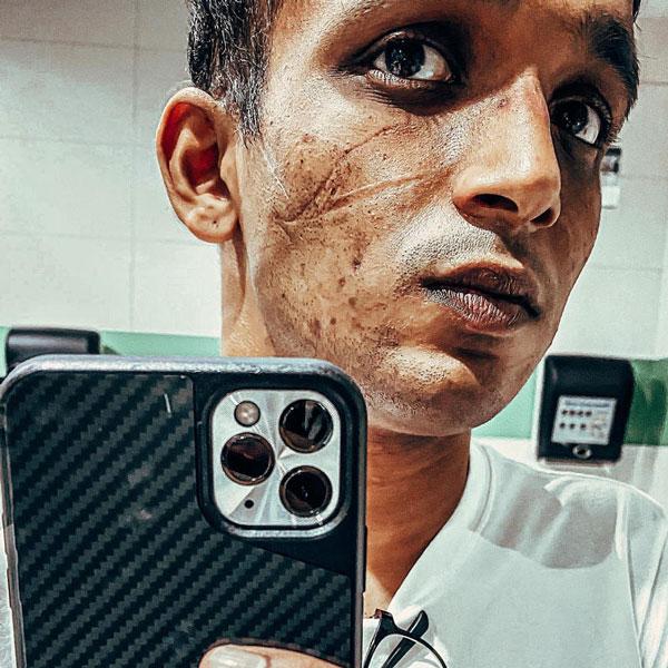 前线医疗人员Benjamin Ong分享长时间戴口罩等防护措施后,在脸上留下疤痕的自拍照。(取自面子书)