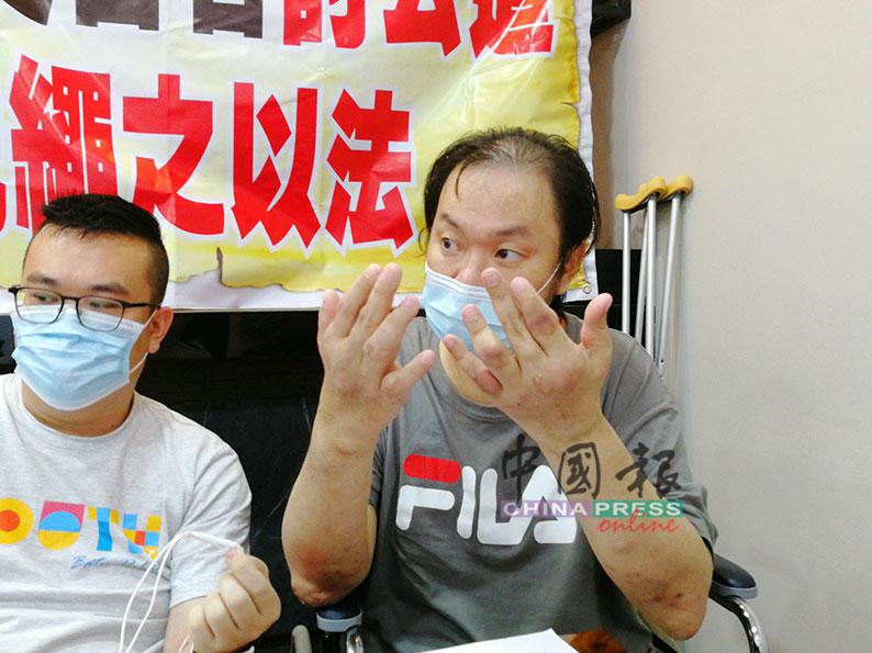郑志忠(右)双手因痛风,无法握笔,只能以盖指印方式处理文件。