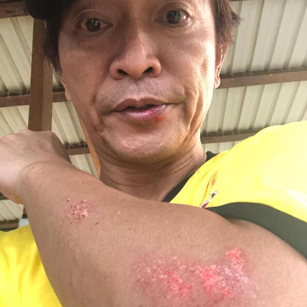 吴宗宪的手被磨破一大片外,连嘴上也破了。