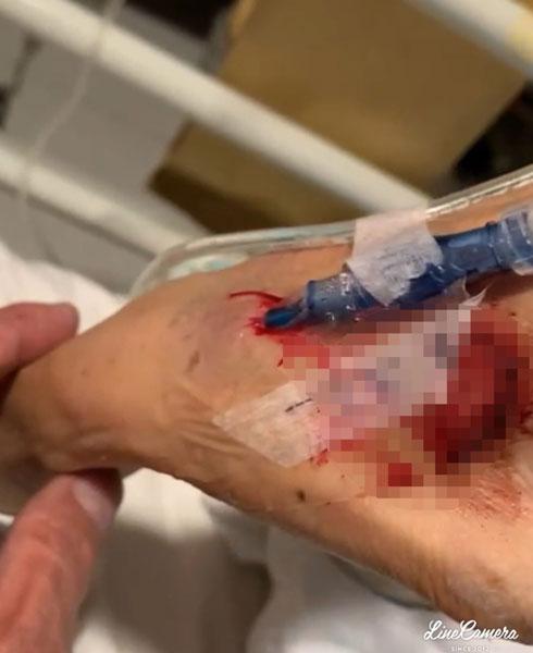 林母手部插针管处回血严重却未被及时处理。林立洋提供