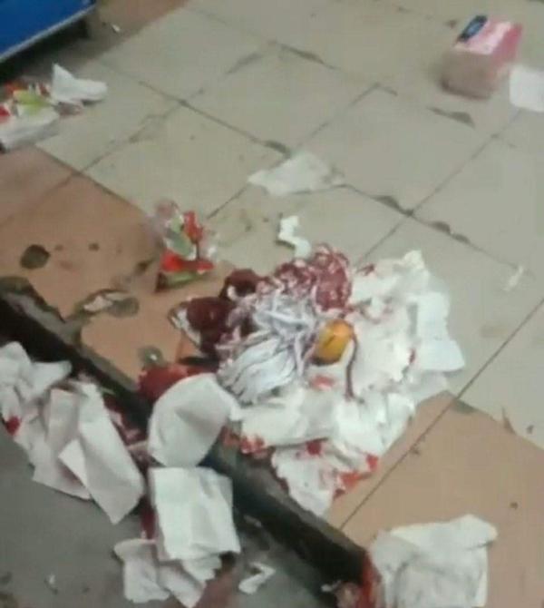 现场散落一地的杂货,都沾满血迹。