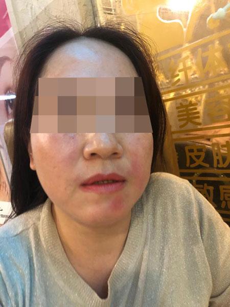 陈女士称安琪和女职员对她拳打脚踢,导致她脸部红肿。(受访者提供)