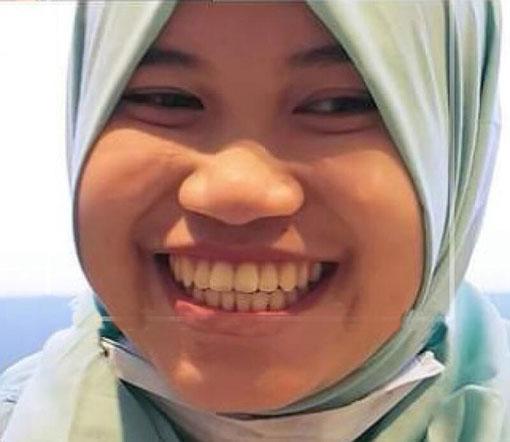 宇妮经免费治疗后重拾笑容。(取自家庭佣工中心面子书)