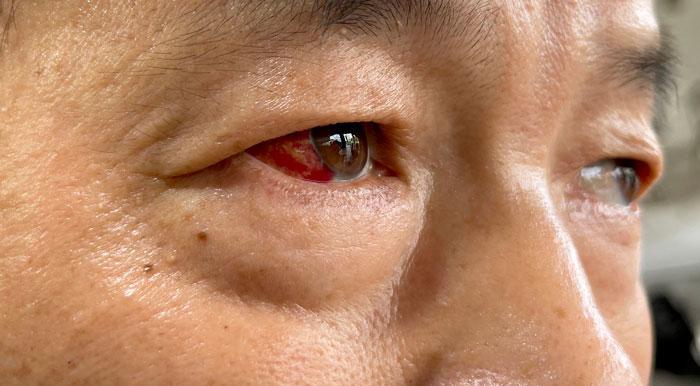 姜波指自己挨了一拳之后,右眼球泛红。