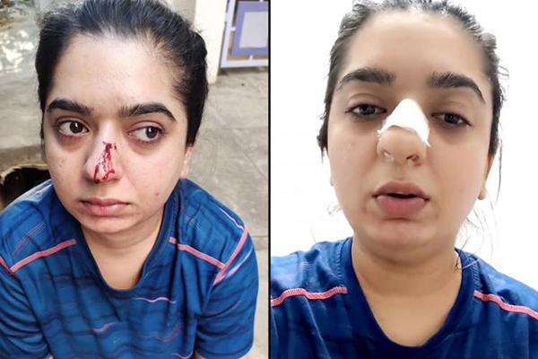 希特莎被外卖员打伤鼻子。