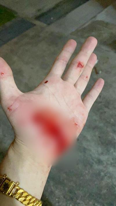 事主因追青年跌倒,手掌脱皮流血。(受访者提供)