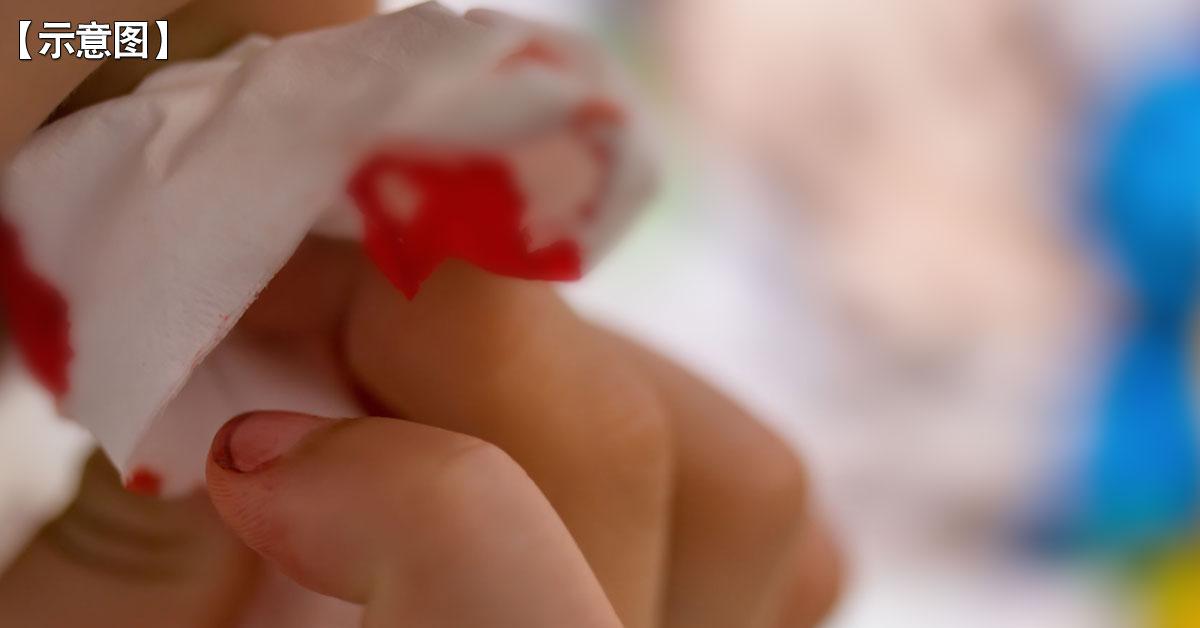 印尼年轻患者  多现吐血病症