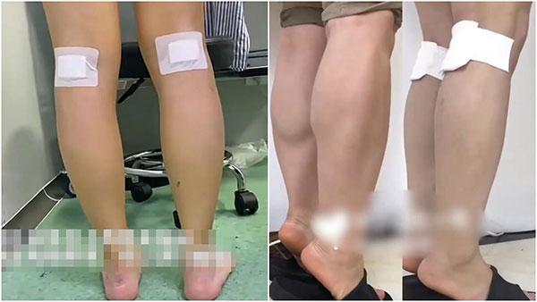 专业医生对有女孩为了瘦腿而切断腿部神经感到震惊不解。图为手术前后的对比照。